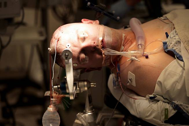 The electrodes that were placed on his brain in the first surgery are seen coming out of Chris Stones' head as he is under anesthetic and being prepared for his second brain surgery, to remove the part of his brain that is causing seizures, at Sunrise Hospital & Medical Center on Tuesday, July 21, 2009.