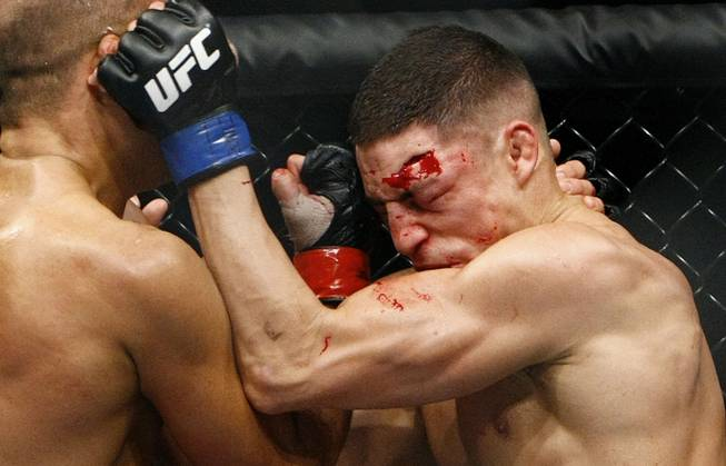 Diego Sanchez tries to defend himself against shots from B.J. Penn during their lightweight championship fight at FedEx Forum in Memphis, Tenn., on Dec. 12, 2009. Penn ended up winning the fight by TKO in the final round.