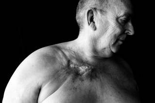 Harold Abramowski, seen in his Overton home August 10, 2010, developed an open wound after a chemotherapy port on his chest leaked, causing the drugs to seep into his flesh during cancer treatment at MountainView Hospital in February 2009.