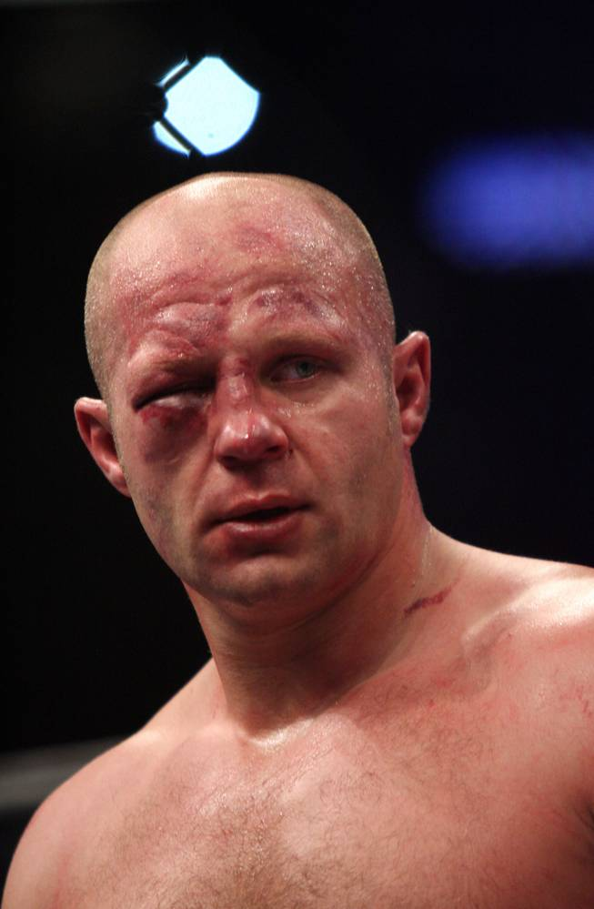 Fedor Emelianenko, of Russia, is seen with the eye that forced a stoppage of his bout against Antonio Silva, of Brazil, during a Strikeforce Heavyweight Grand Prix fight on Saturday, Feb. 12, 2011 at the Izod Center in East Rutherford, N.J. Silva won after the end of the second round when the doctor said Emelianenko could no longer see out of his eye.