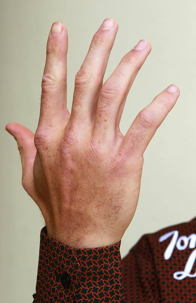 This is the hand that professional bull rider J.W. Harris broke.