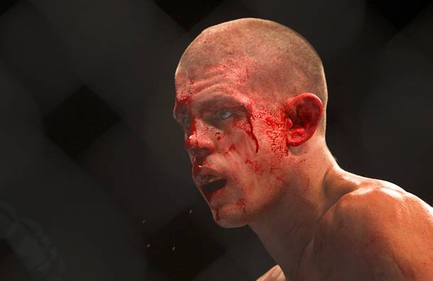 Joe Lauzon of Bridgewater, Mass. bleeds from cuts on his face in a lightweight bout against Jim Miller of Whippany, N.J. during UFC155 at the MGM Grand Garden Arena Saturday, Dec. 29, 2012. Miller defeated Lauzon by unanimous decision.