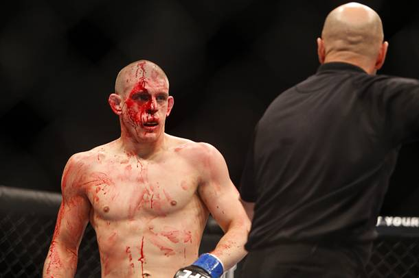 Joe Lauzon of Bridgewater, Mass. is directed to be checked out by a doctor during a lightweight bout against Jim Miller of Whippany, N.J. at the MGM Grand Garden Arena Saturday, Dec. 29, 2012. Miller defeated Lauzon by unanimous decision.