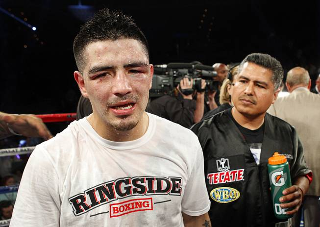 Brandon Rios, left, paces the ring after losing to Mike Alvarado in a super lightweight bout for an interim 140lb. WBO title at the Mandalay Bay Events Center Saturday, March 30, 2013. The fight was a rematch to a Oct. 13, 2012 fight  which Rios won.
