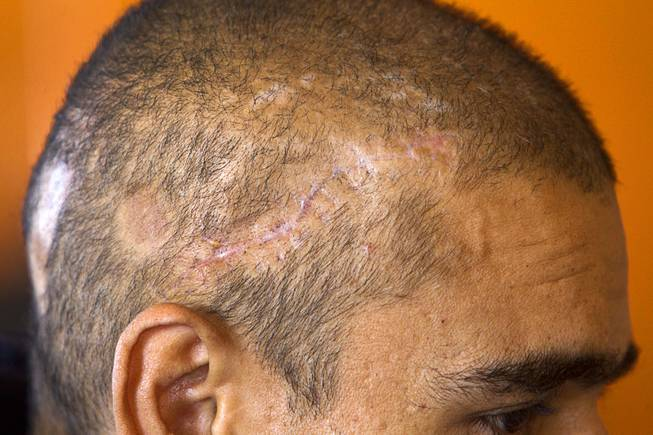 Scars from an assault and robbery are shown on the head of Francisco Diaz in Mexicali, Mexico Sunday, Jan. 26, 2014. Diaz was born in Mexico but grew up in Las Vegas with a green card.