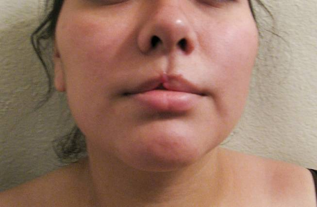 An image of Victoria Silva before undergoing reconstructive surgery to fix her upper lip, which was bitten off by an ex-boyfriend during an attack.