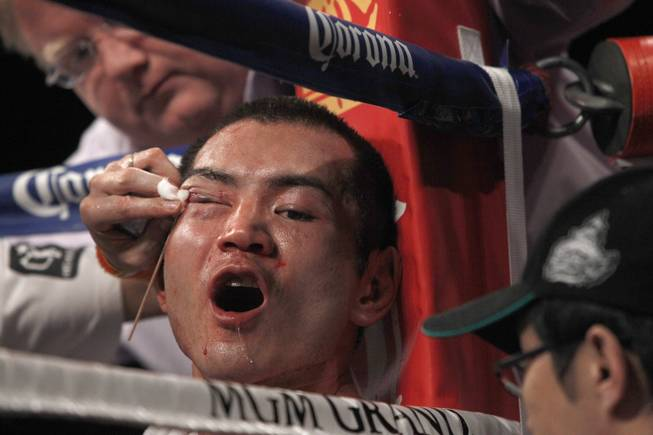 Nihito Arakawa of Japan is checked out in his corner between rounds during a lightweight fight against Jorge Linares of Venezuela at the MGM Grand Garden Arena on Saturday, March 8, 2014.