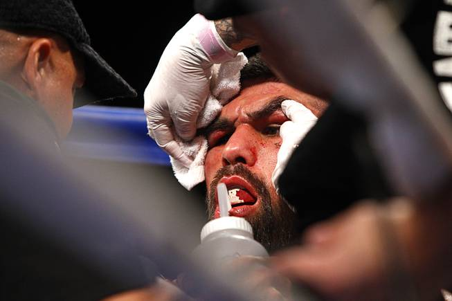 Alfredo Angulo of Mexico is treated in his corner between rounds during his super welterweight fight against Canelo Alvarez at the MGM Grand Garden Arena Saturday, March 8, 2014.