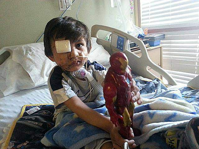 This February 2014 photo provided by Flor Medrano shows Kevin Vicente in Phoenix. Four-year-old Kevin Vicente's road to recovery after a dog mauling on Feb. 20, 2014, which left him with a broken eye socket and jaw, and the boy has months, if not years, of reconstructive surgery ahead of him.