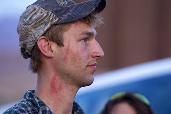 The face of Spencer Shillig of St. George, Utah, shows injuries he says he sustained while being detained by Bureau of Land Management officers in the Lake Mead National Recreation Area near Overton Thursday, April 10, 2014.