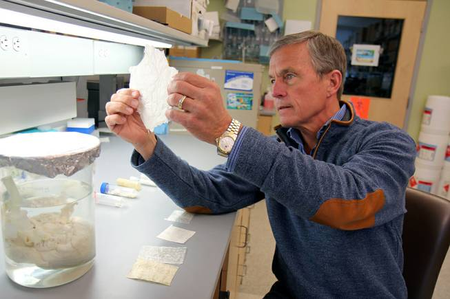 "Dr. Stephen Badylak, deputy director of the McGowan Institute for Regenerative Medicine, holds a sheet of ""extracellular matrix,"" scaffolding-like material derived from pig bladder."