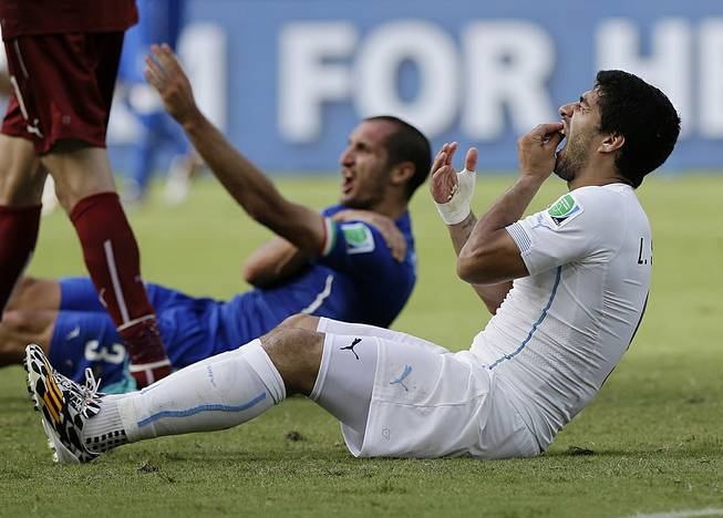 Uruguay's Luis Suarez holds his teeth after biting Italy's Giorgio Chiellini's shoulder during the group D World Cup soccer match between Italy and Uruguay at the Arena das Dunas in Natal, Brazil, Tuesday, June 24, 2014.