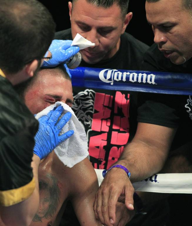 Pennsylvania's Ronald Cruz has a cut over his eye attended to by his cornerman as ShoBox: The New Generation on SHOWTIME presents their welterweight fight at the Hard Rock Hotel & Casino on Friday, June 27, 2014.