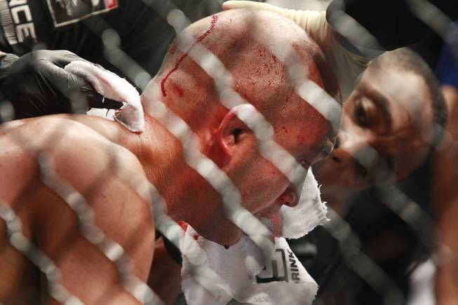 "B.J. Penn's face is attended to after Frankie Edgar scored a third round TKO over him at ""The Ultimate Fighter"" 19 finale Sunday, July 6, 2014 at the Mandalay Bay Events Center."
