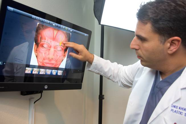 Dr. Christopher Khorsandi, of The Migraine Relief Center, shows the nerves in the forehead that are the cause of most chronic migraines, July 3, 2014.