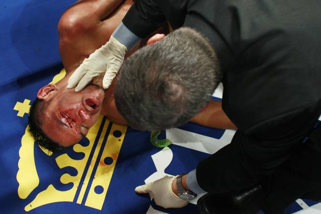 Pungluang Singyu is checked on after being knocked out in the 7th round by Tomoki Kameda during their WBO bantamweight title fight Saturday, July 12, 2014 at the MGM Grand Garden Arena.