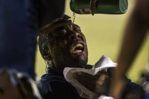 Canyon Springs head coach Gus McNair winces in pain from pepper spray to the face following a fight on field with Basic players and coaches after their game on Friday, September 15, 2017.